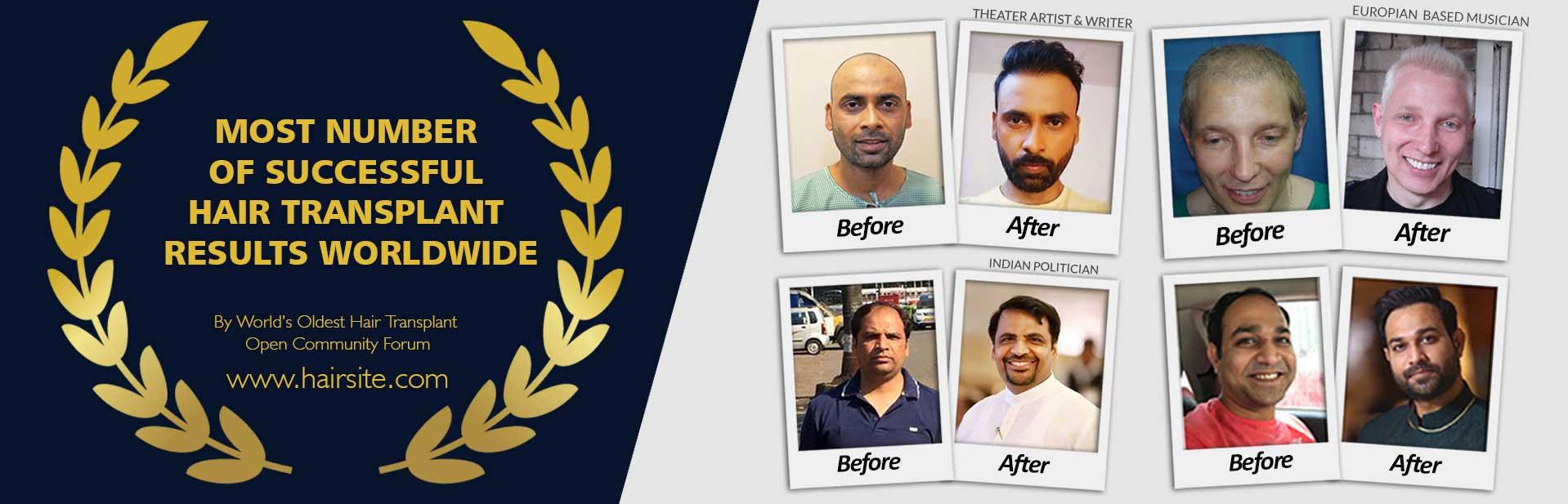 Best Hair Transplant RESULTS