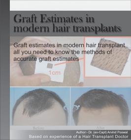GRAFT ESTIMATES IN MORDERN HAIR TRANSPLANTS
