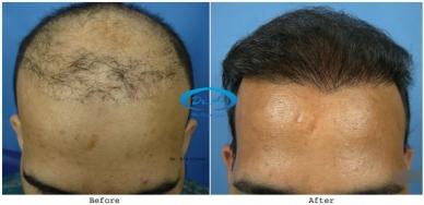 Sub Gallery Hair repair